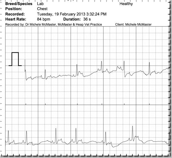 ECG McMaster Heap